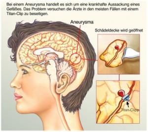 Aneurysma Gehirn OP.Titan-Clipp